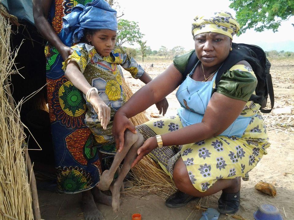 Девочка из Нигерии, пострадавшая от полиомиелита