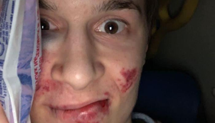 В Москве избили участника акций протеста блогера Егора Жукова