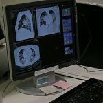 Сколько стоит ковид бюджету: минздрав назвал расценки на тесты и КТ на Алтае
