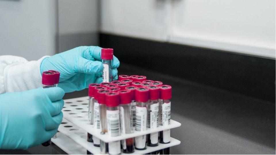 Какие вакцины от коронавируса есть и что о них нужно знать
