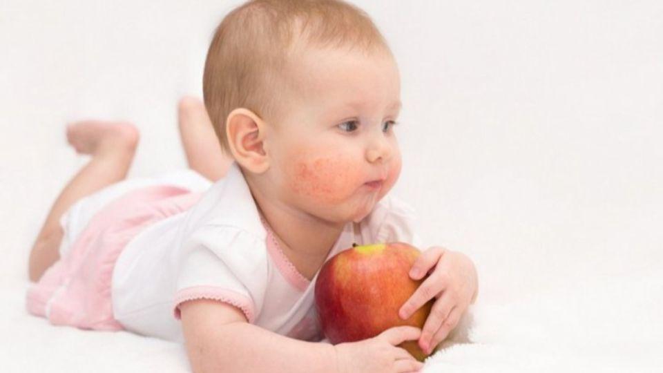 Нечем кормить: матери детей-аллергиков обратились к Томенко за помощью