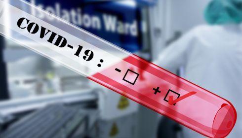 Это фиаско: количество ложноотрицательных тестов на ковид в крае достигает 30%