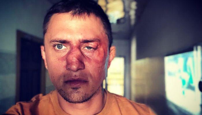 Друг Прилучного рассказал подробности избиения артиста