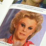 В Барнауле создали первую в России косметику для заживления ожогов